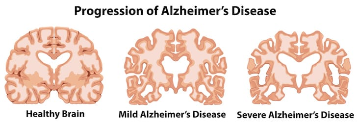 What You Should Know About Alzheimer's Disease