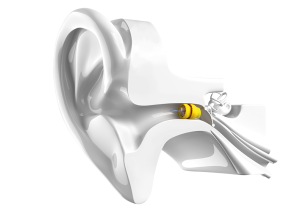 drawing of an ear with phonak lyric inserted in ear canal